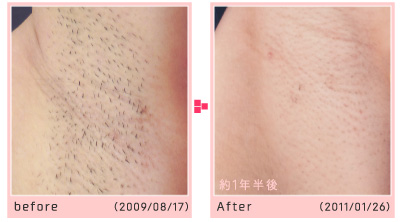 before/after 約1年半後